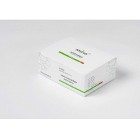 Quality 0.5-200mg/L CRP Rapid Test Kit for sale